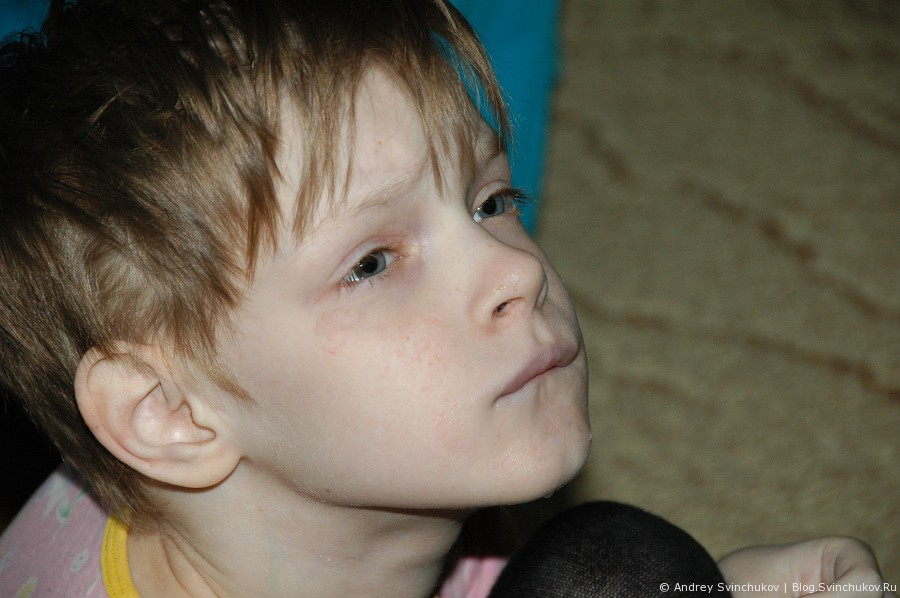 Хабаровский дом-интернет для умственно отсталых детей